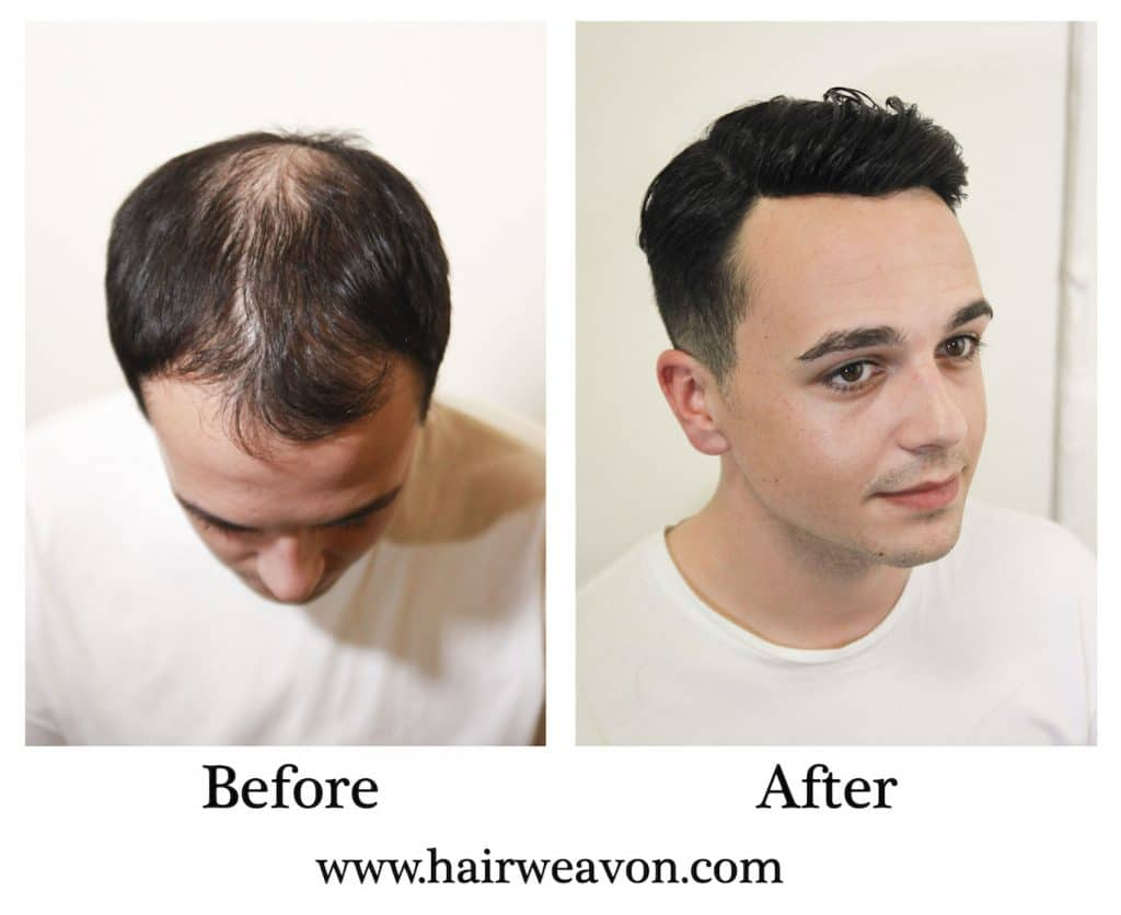 Hair Replacement Systems for Men Balding