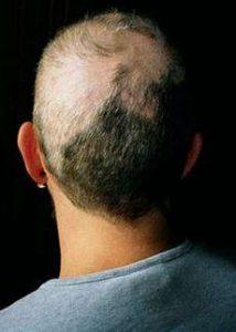 Trichotillomania hair loss