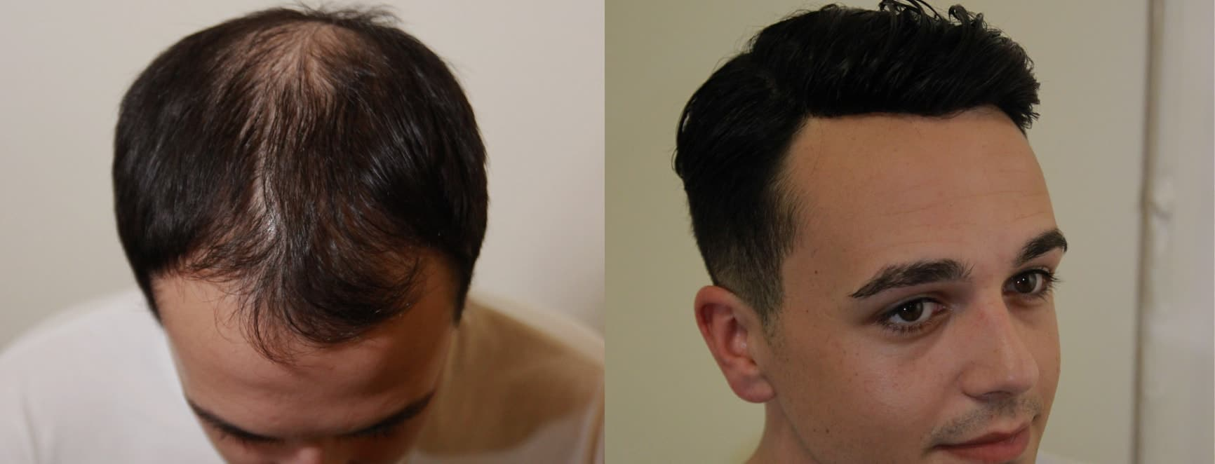 Hair replacement systems for male balding