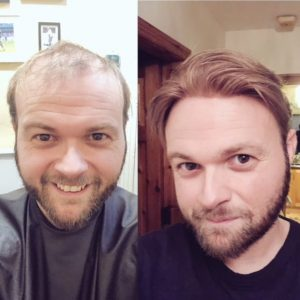 Hair replacement Before and After photo