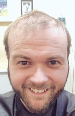 Darren Hair Replacement Before
